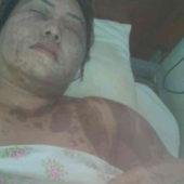 В Дашогузе женщину, искавшую справедливости, избили и облили кислотой